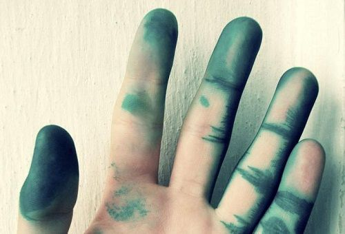 Зелёнка на руках