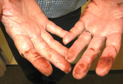 Пятна марганцовки на руках